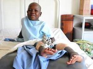 Operationen für Kinder in Uganda